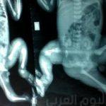 """مفاجأة.. حياة جديدة لـ """"طفلة مولودة بثلاث أرجل"""".. صور"""
