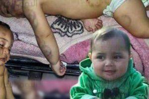 أب يقتل طفلته الرضيعة عضاً