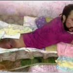 استغاثة شاب مصاب بشلل نصفي.. رفض الأطباء علاجه.. فيديو